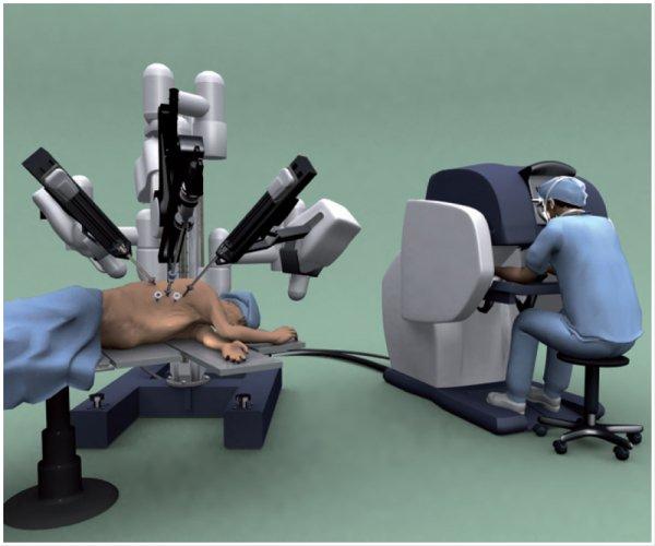 Algemeen.robot-chirurgie
