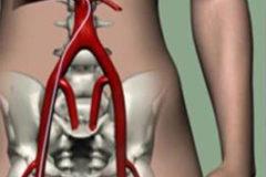 Nieuwe combinatiebehandeling van Y90 en operatie voor levertumoren